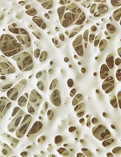 osteoporosi-sintomi-cause-cure-alimentazione